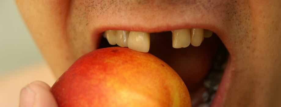 Tooth Loss Risks